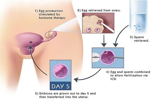 Steps of In vitro fertilization